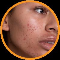 Nimbadi-Face-Cleanser-Benefits-4