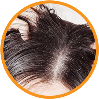 Red-onion-Shampoo-Benefits-4