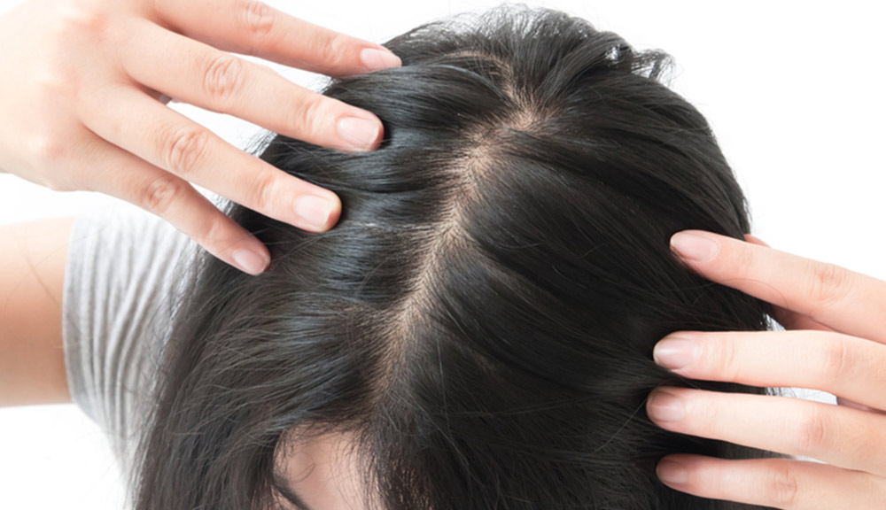 growth-of-lice-on-your-hair