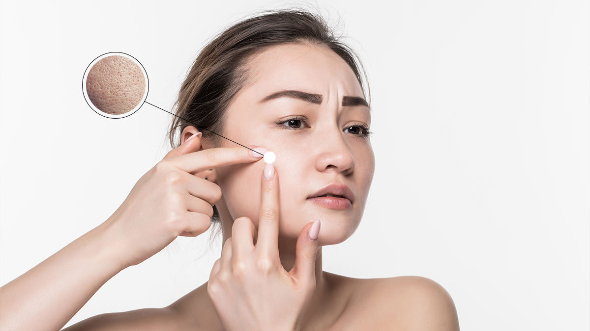 Minimize open pores