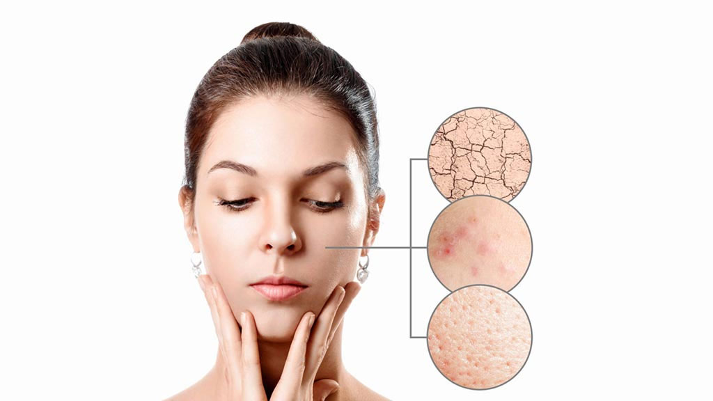pimple-breakouts-and-acne