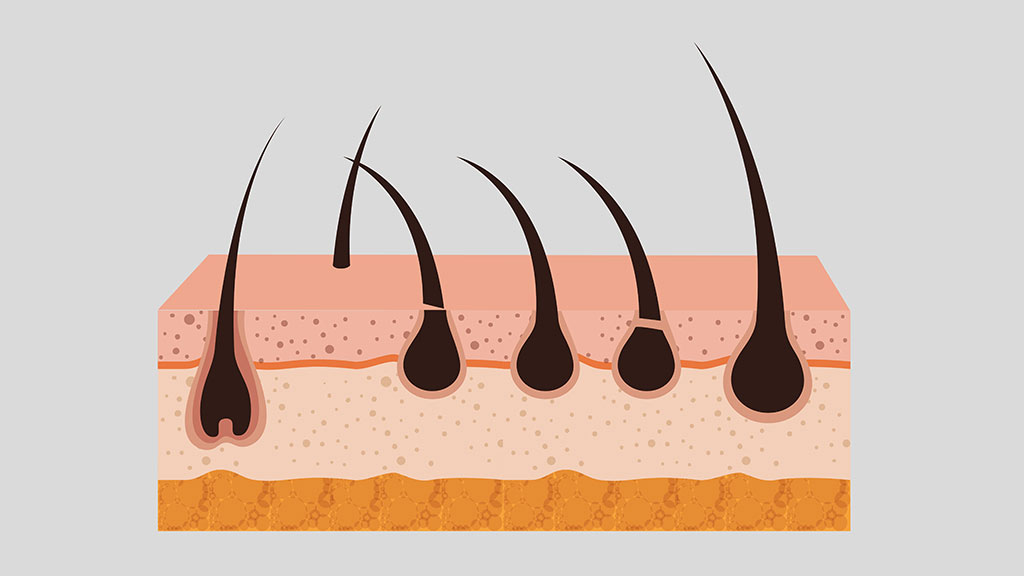Limits-the-growth-of-ingrown-hair
