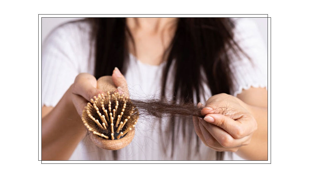 What-causes-hair-loss